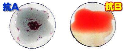 の 馬 型 種類 血液 の 犬の血液型の基礎知識。血液型の種類や検査方法などを解説