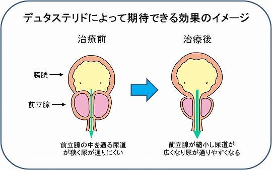 肥大 症 薬 前立腺